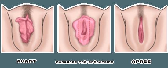 avant_apres_chirurgie_intime_nymphoplastie